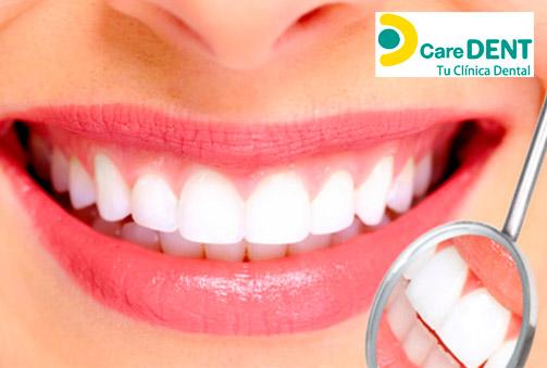Revisión dental completa con radiografía panorámica e higiene bucal con pulido de manchas