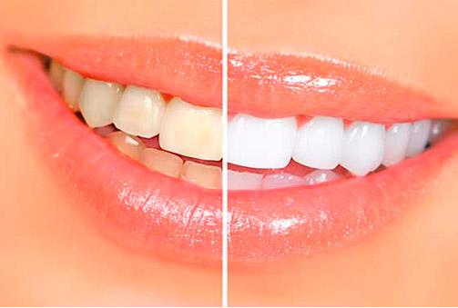 ¡Tu sonrisa será la estrella! Blanqueamiento dental y kit de mantenimiento